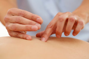 Akupunktur in der Behandlung der Orthopädiepraxis Schlosser Berlin Treptow